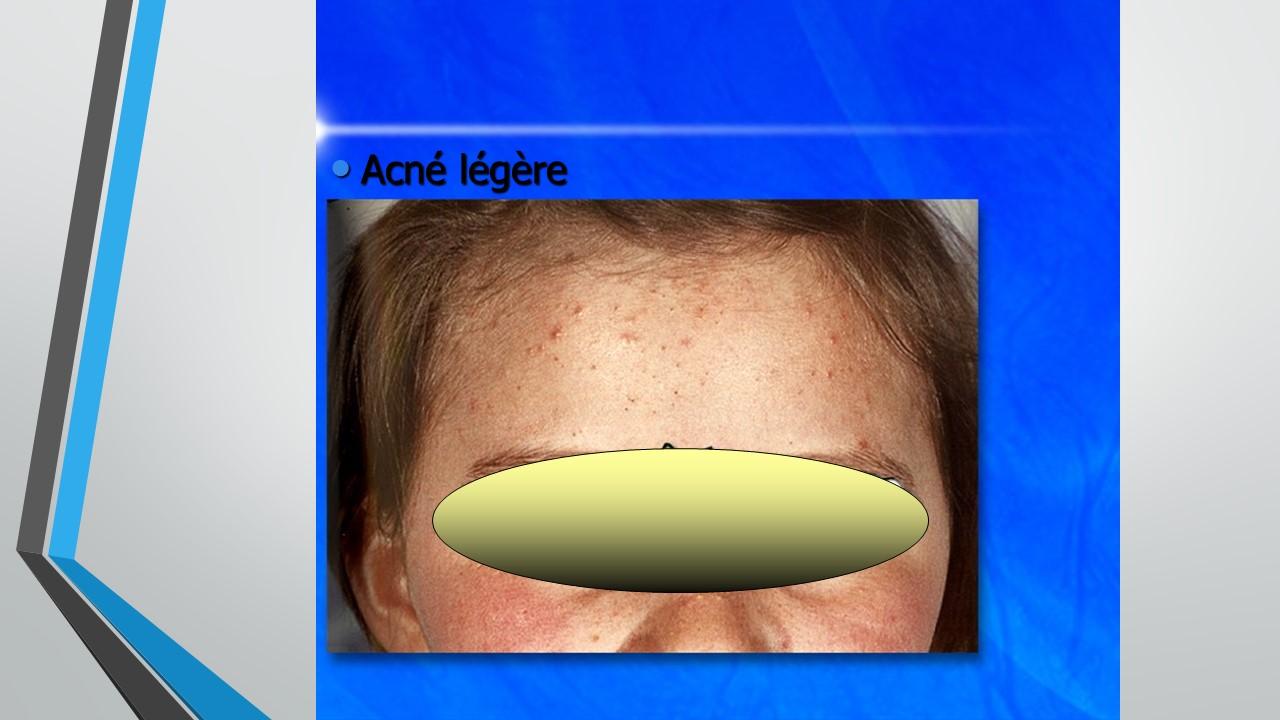 acné légère