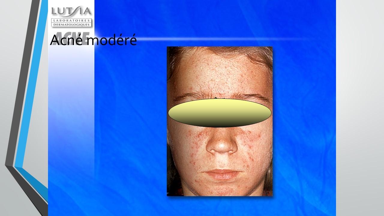 acné modérée